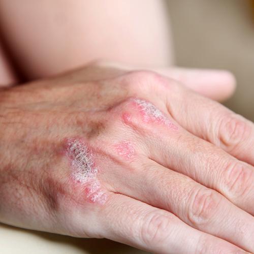 Det finns en rad symtom som tyder p att man drabbats av psoriasisartrit: 2